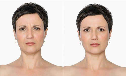 Clínicas de Ácido hialurónico en Coatzacoalcos, Clínicas de Rejuvenecimiento facial en Coatzacoalcos